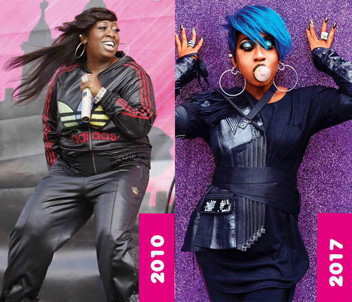 Missy elliott graves disease before and after