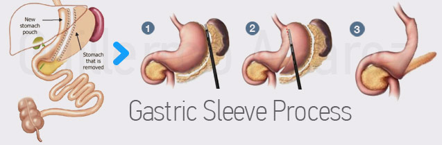 Gastric Sleeve Surgery: What is a Gastric Sleeve Procedure?