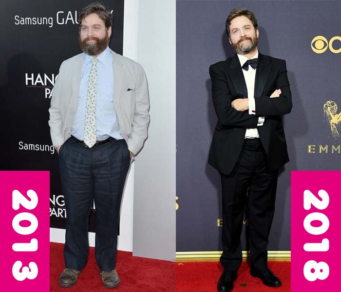 Zach Galifianakis weight loss, before and after, fat thin